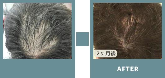 ビフォーアフター 薄毛